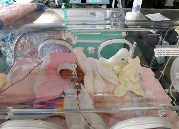 Tikai 24 nedēļas veca mazulīte - izdzīvoja! 1