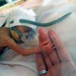 Tikai 24 nedēļas veca mazulīte - izdzīvoja! 3