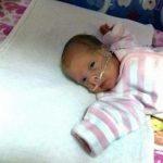 Tikai 24 nedēļas veca mazulīte - izdzīvoja! 5