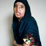 Šausminoši skati: Ir pasaulē tādas vietas, kur sievietes ''soda'' aplejot ar skābi 6