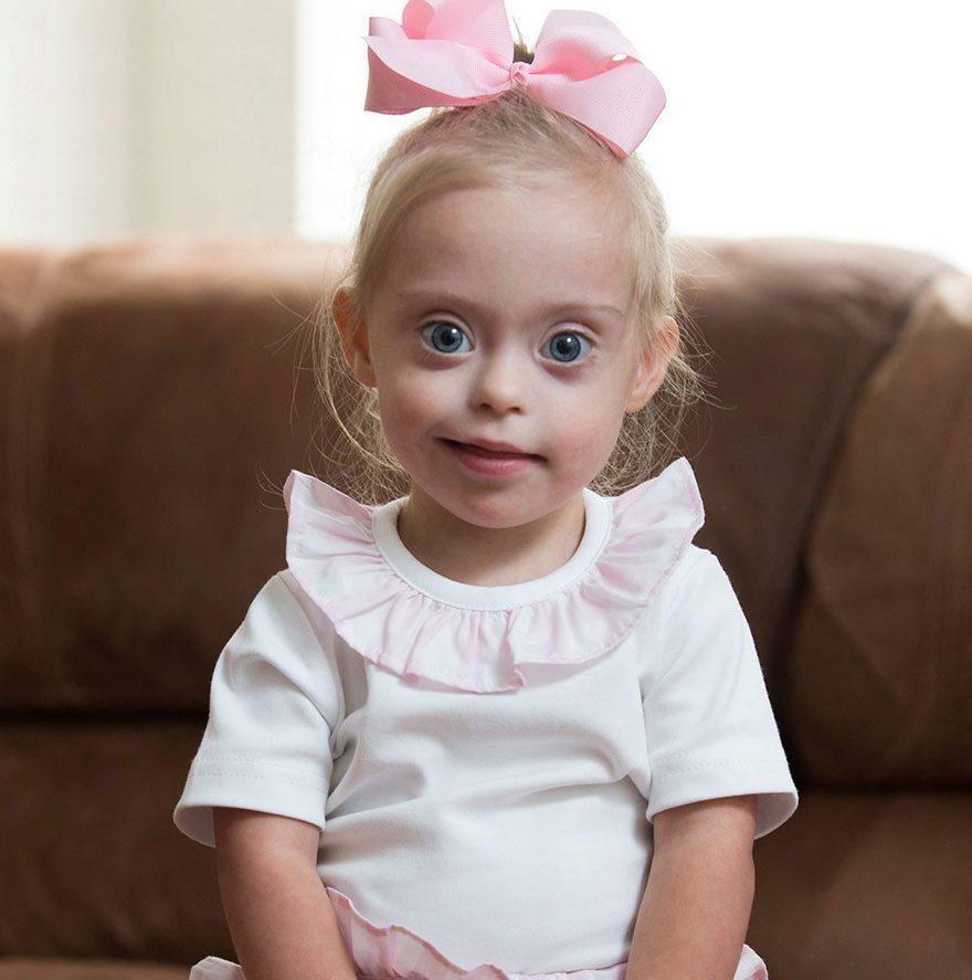 Šī divgadīgā meitenīte ar dauna sindromu ir ļoti populāra bērnu modele 1