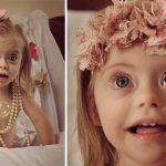 Šī divgadīgā meitenīte ar dauna sindromu ir ļoti populāra bērnu modele 9