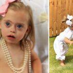 Šī divgadīgā meitenīte ar dauna sindromu ir ļoti populāra bērnu modele 10