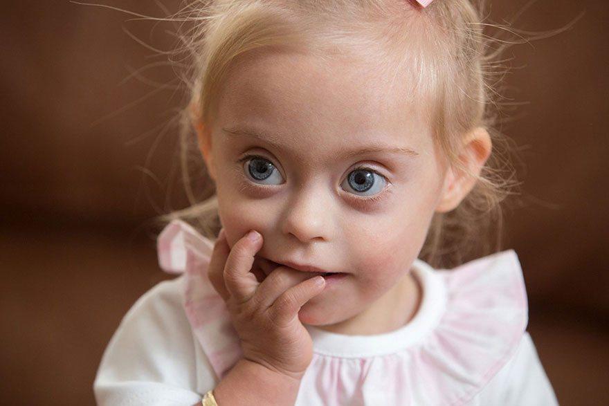 Šī divgadīgā meitenīte ar dauna sindromu ir ļoti populāra bērnu modele 2