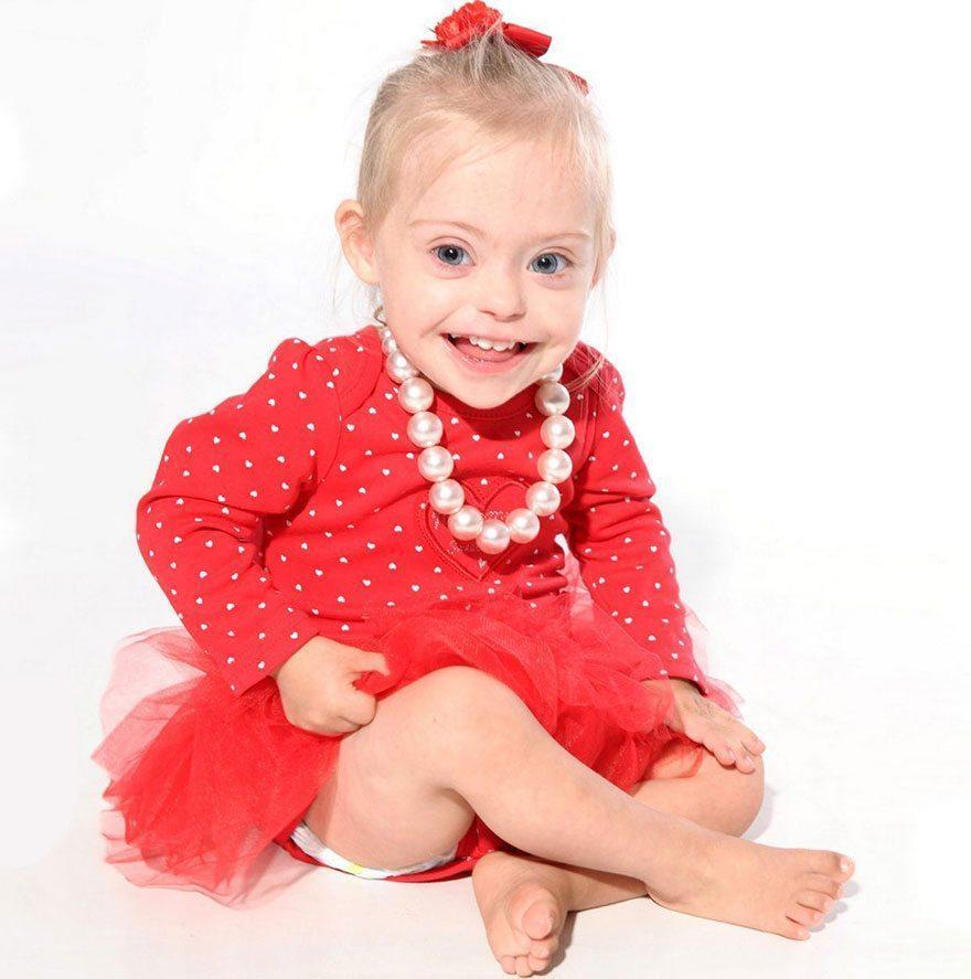 Šī divgadīgā meitenīte ar dauna sindromu ir ļoti populāra bērnu modele 3