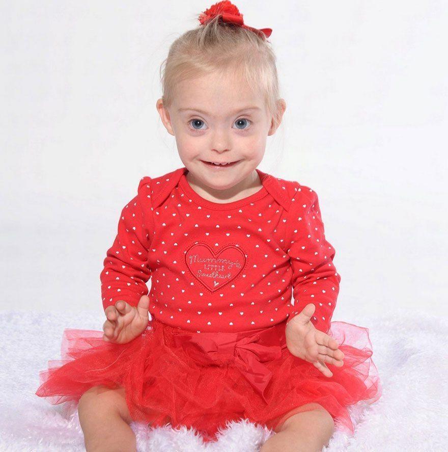 Šī divgadīgā meitenīte ar dauna sindromu ir ļoti populāra bērnu modele 4