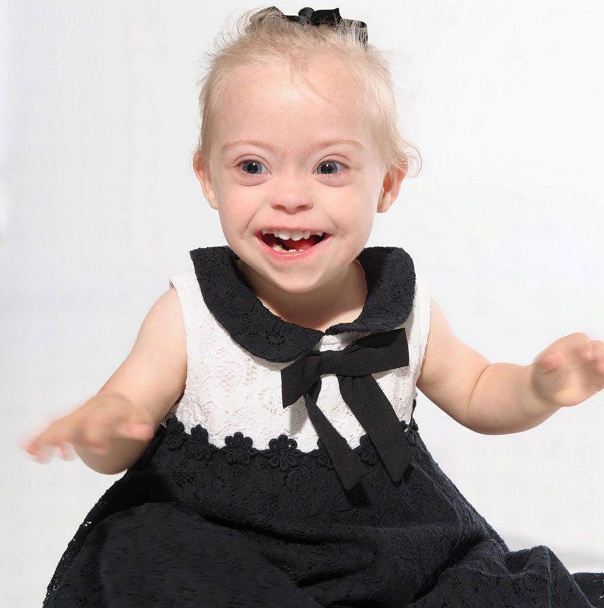Šī divgadīgā meitenīte ar dauna sindromu ir ļoti populāra bērnu modele 5