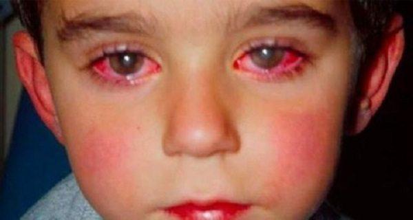 Šis zēns zaudēja 75% redzes dēļ rotaļlietas, kas var būt katrā mājā. Esat uzmanīgi!