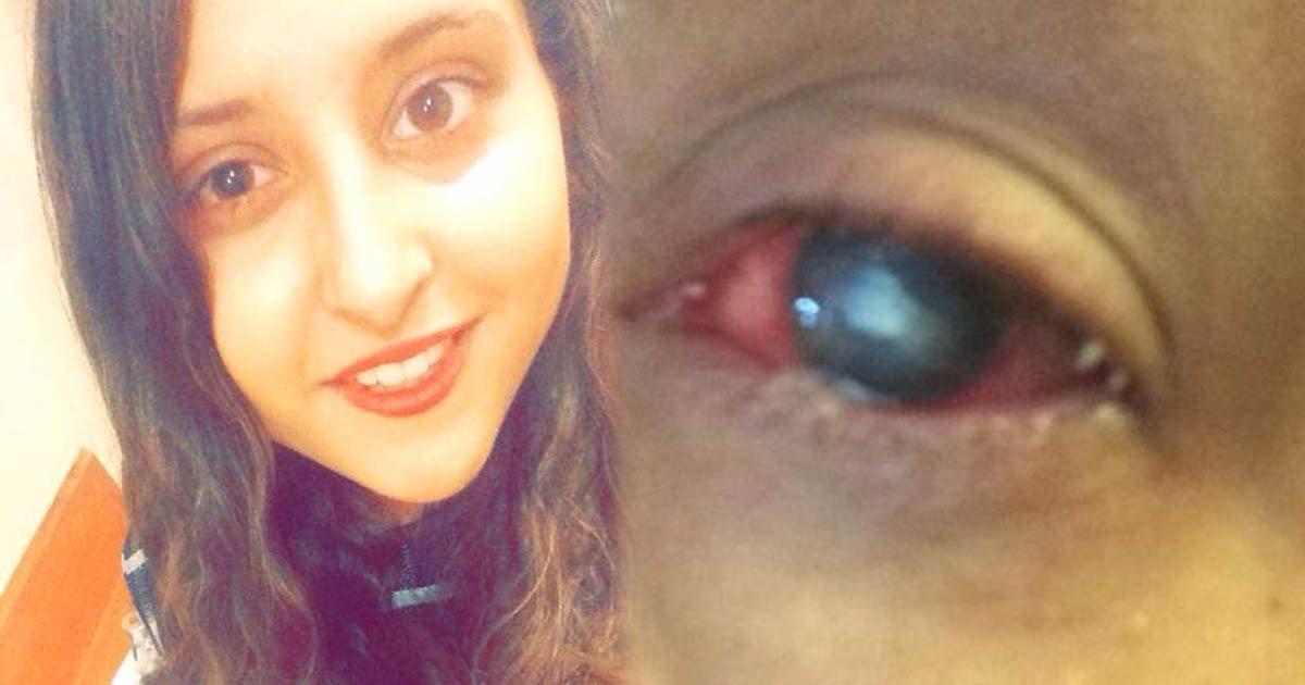 greaney-eye
