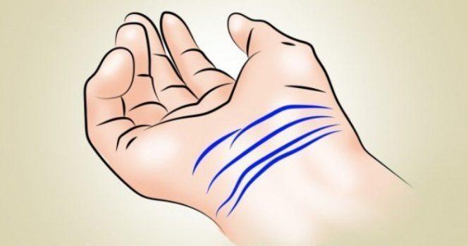 rokas-linijas