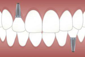 Kā izvēlēties zobu implantus?